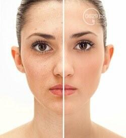 Новейшие технологии в сфере косметологии. Лазерное омоложение лица, фото-4