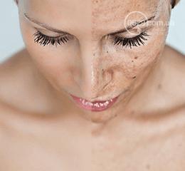 Новейшие технологии в сфере косметологии. Лазерное омоложение лица, фото-2