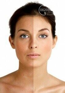 Новейшие технологии в сфере косметологии. Лазерное омоложение лица, фото-6