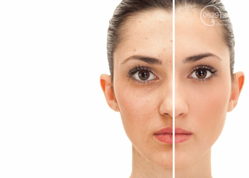 Как найти своего идеального косметолога?, фото-1