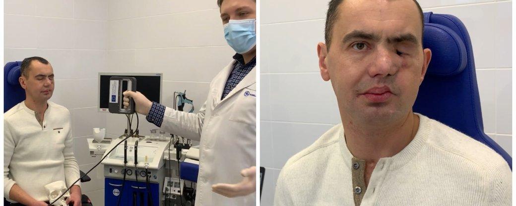 Мариупольцу провели уникальную пластическую операцию, - ФОТО, ВИДЕО, фото-1